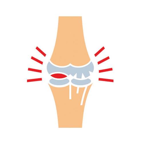 afrigetics-botanicals-rosalipid-rosehip-extract-joint-knee